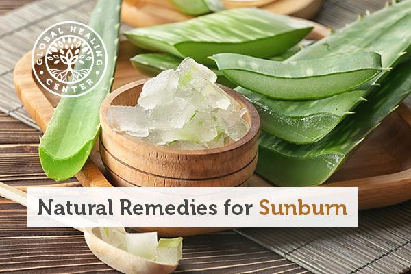sunburn-remedies
