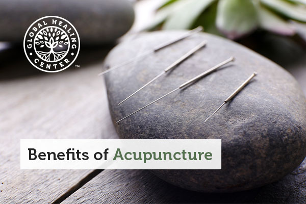 benefits-of-acupuncture