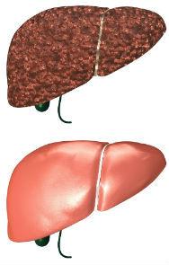 healthy-unhealthy-liver1