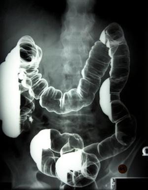 colon-xray-with-barium