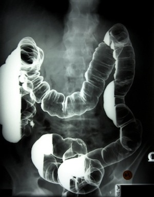 colon-xray-with-barium