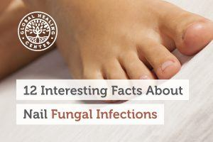 fungal-infection-blog-300x200