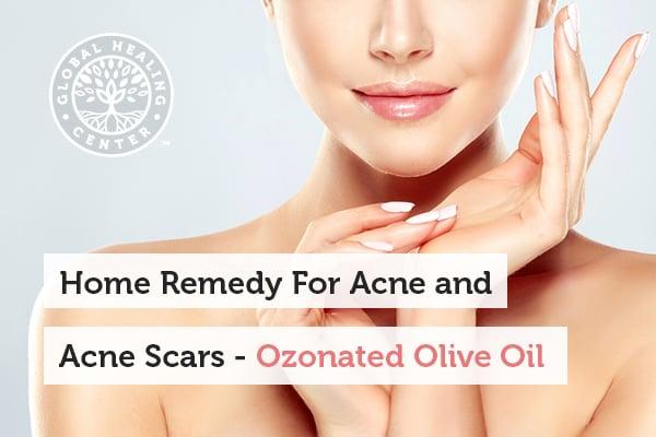 ozonated-olive-oil