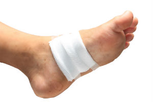 skin-ulcer
