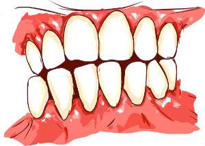 gum-disease_1