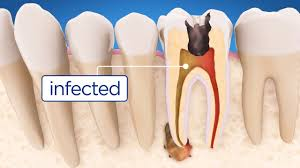 root_canal_infected