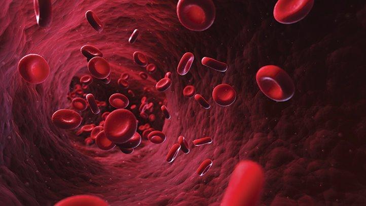 iron-def-anemia-722x406