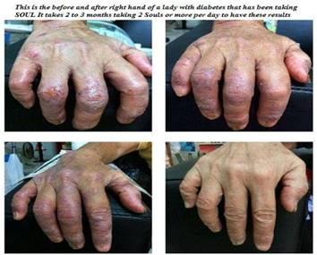 diabetes_hands