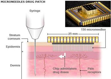 microneedle-skin-patch