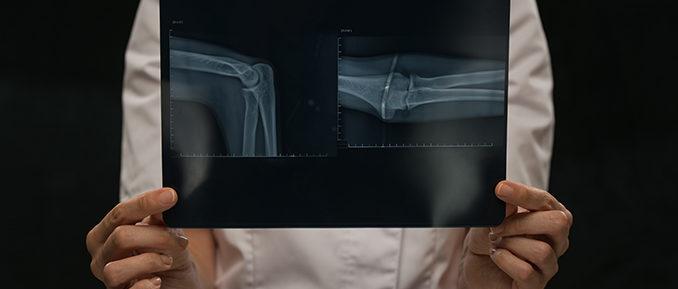 bone-image-678x289