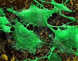 brain-cancer-cells
