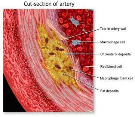 cut-section-of-artery