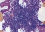 thrombocytes-platelets