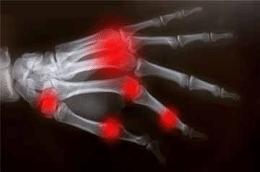 hand-arthritis