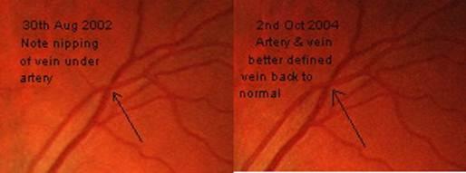 pericorneal-arterioles-capillares