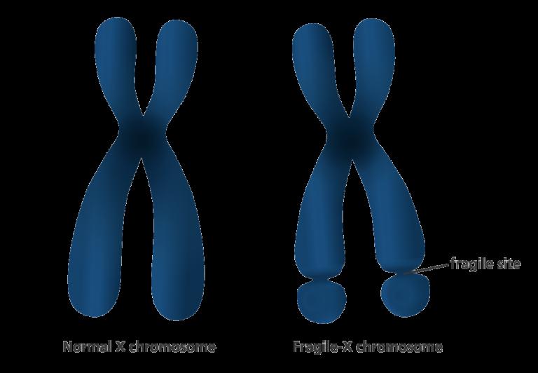 fragile-x-chromosome-768x532