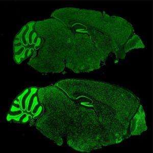 fragile-x-mouse-brain-300x300