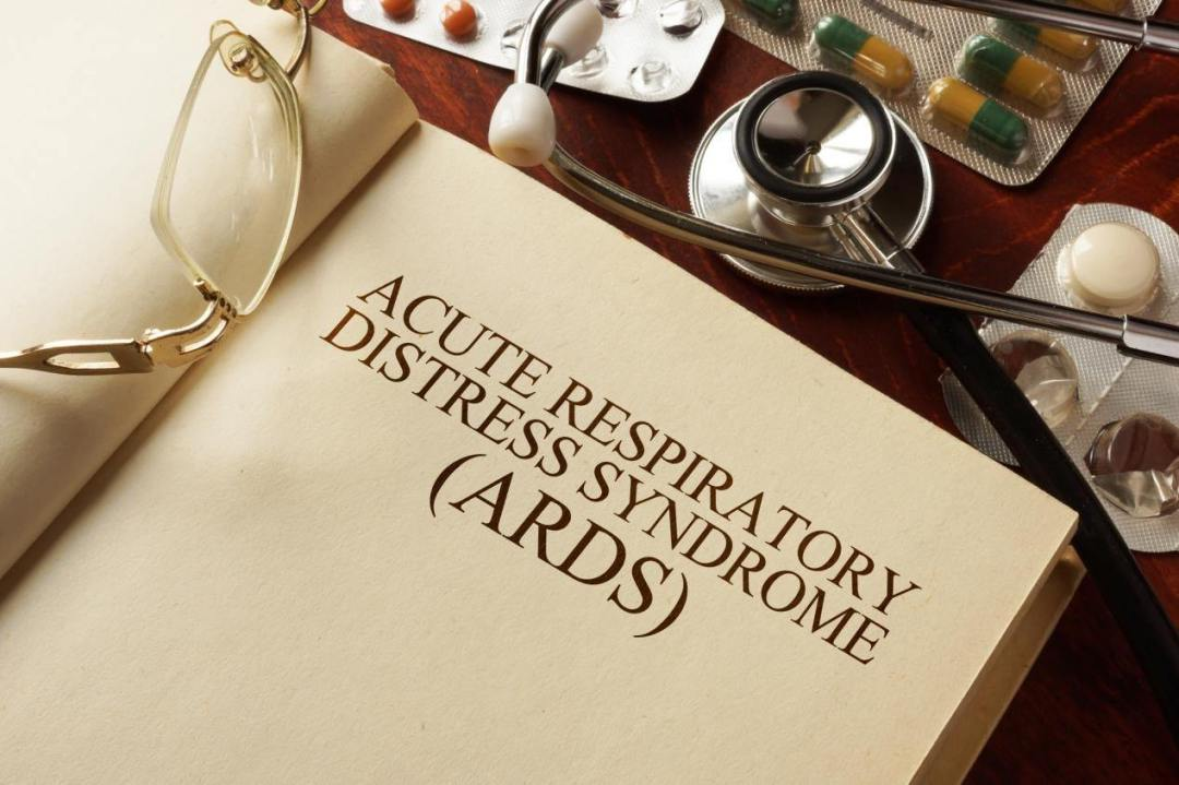 acute-respiratory-distress-syndrome-ards