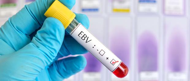 ebv-histone-modification