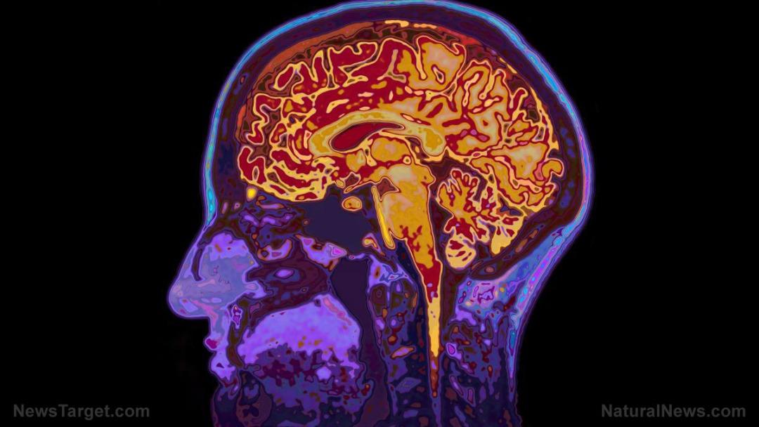 Mri-Image-Head-Showing-Brain