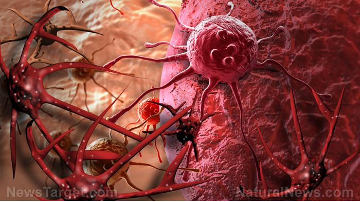 Cancer-Cell-Tumor
