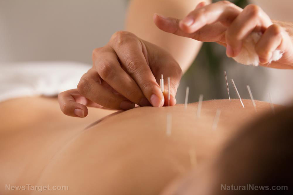 The-Doctor-Sticks-Needles-Into-Girls-Body-Acupuncture-Close-Up