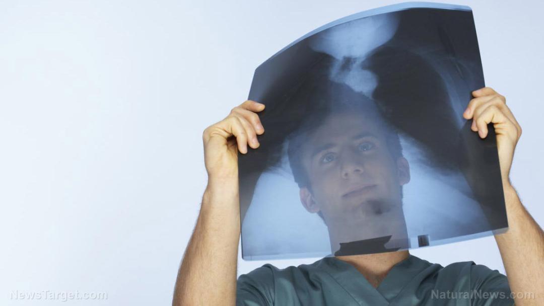 X-Ray-Sheet-Bones-Doctor
