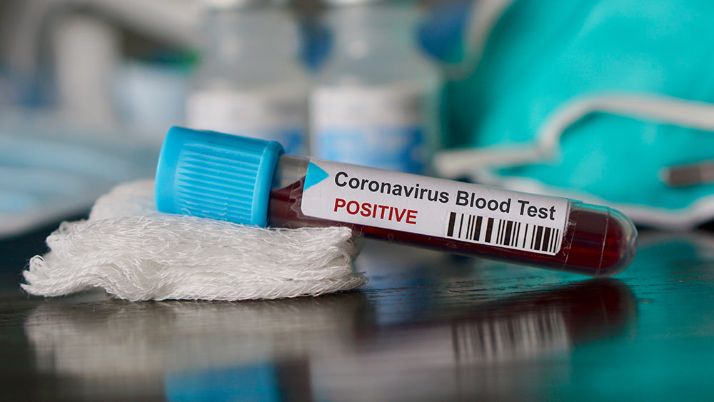 New study says people with blood type A more likely to catch the coronavirus