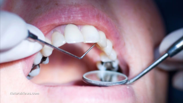 Dental fillings are raising mercury in blood to alarming levels