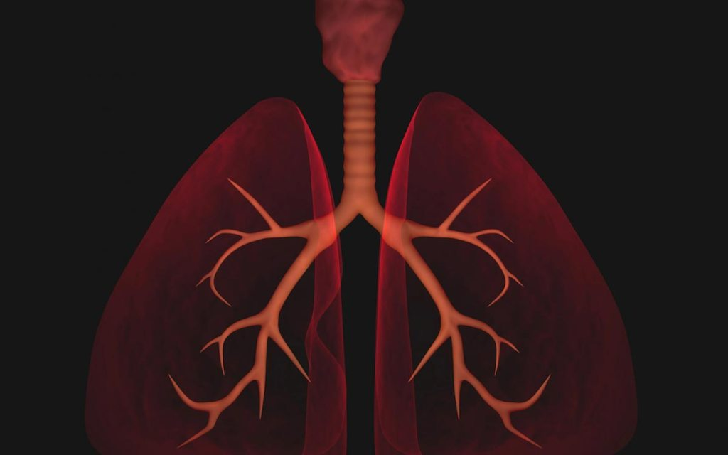 Beneficial effects of black ginseng against particulate matter-induced lung damage