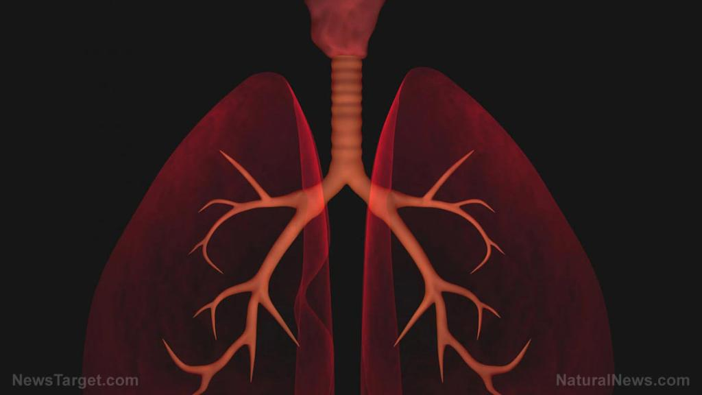 Black ginseng found to protect against lung injury caused by particulate matter