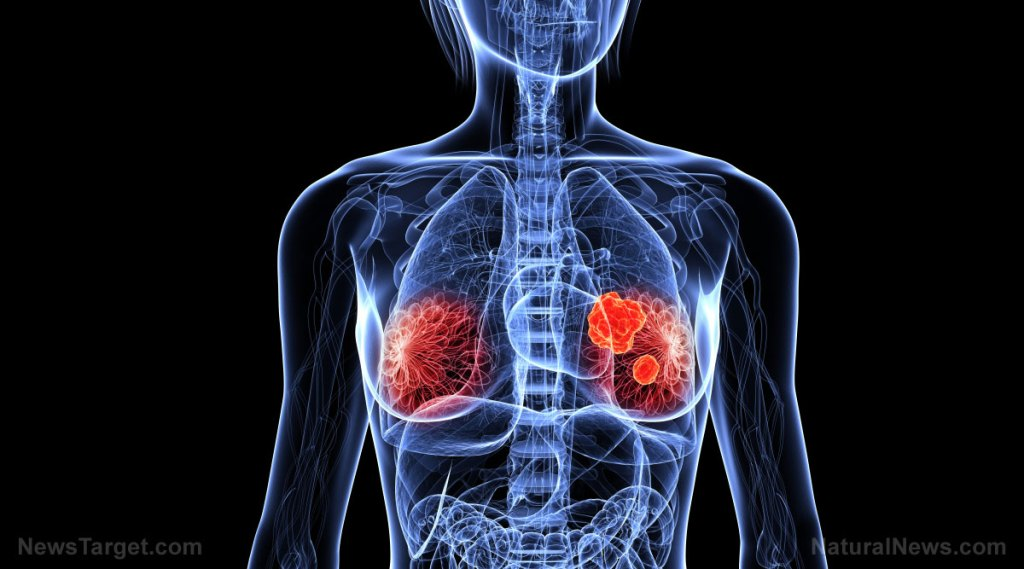 Obesity can make breast cancer cells more aggressive