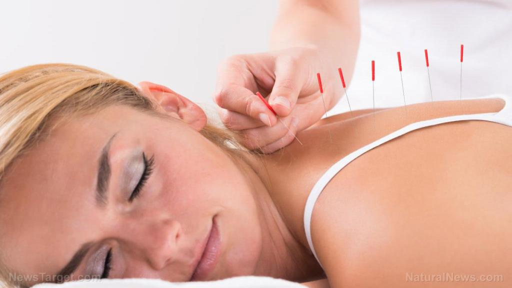 Acupuncture significantly reduces pain following C-section: Research