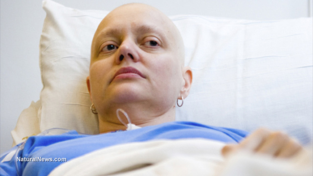 Radiation therapy for cancer causes brain damage, disrupting taste and smell