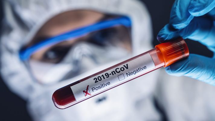 """BOMBSHELL: Up to 90% of COVID-19 """"positive"""" test results are false, test kits matching dead viral fragments that pose no infection risk"""