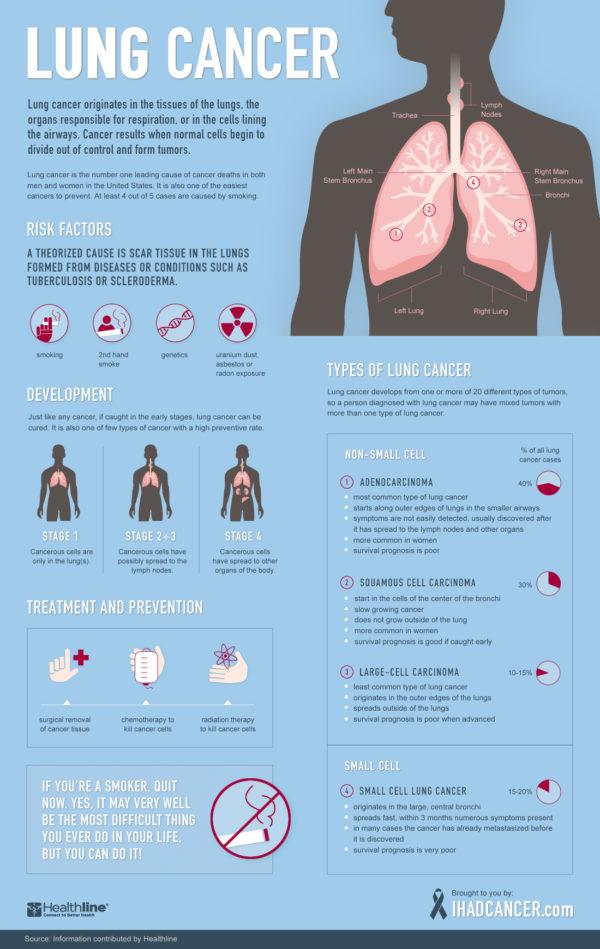 Smoking, Lung Cancer, and Epigenetics
