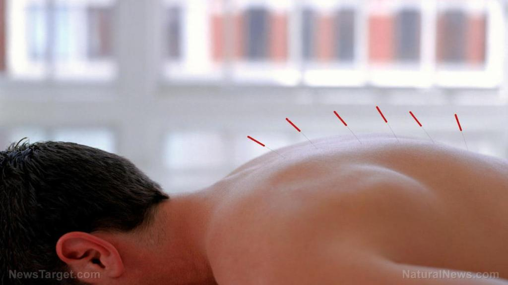 Acupuncture at these specific points alleviates pain in cancer patients