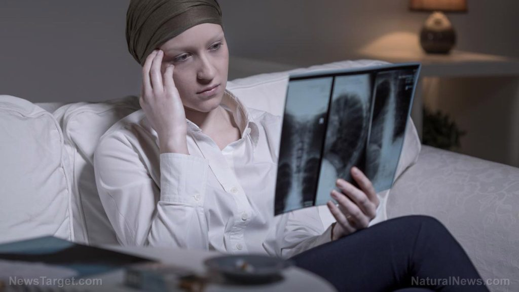 Chemotherapy found to stop new brain cells from growing, worsening depression in brain cancer patients