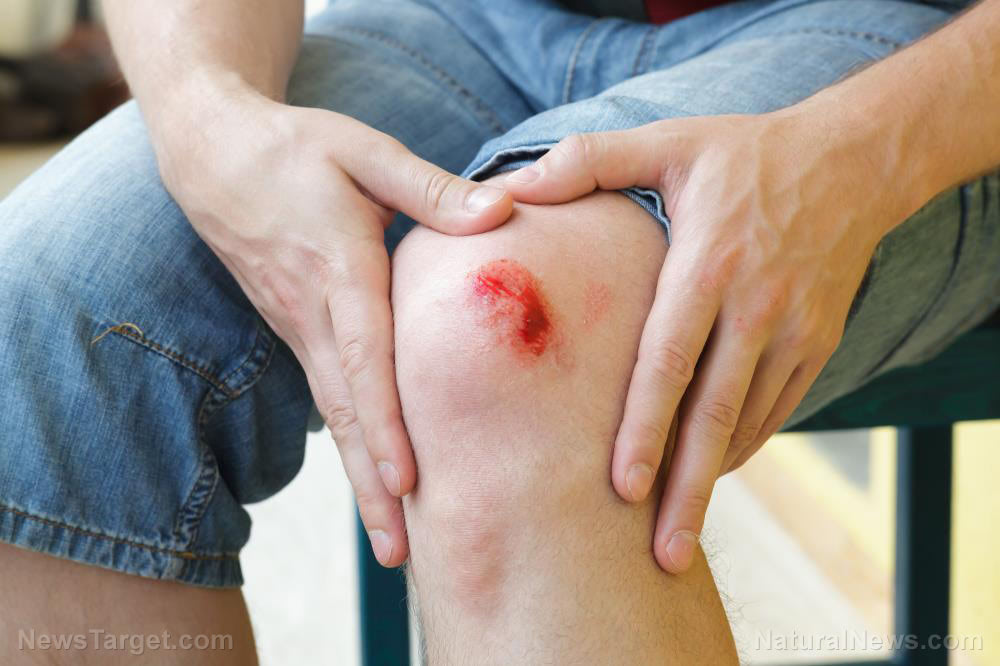 Treating wounds: How to recognize and prevent wound infection