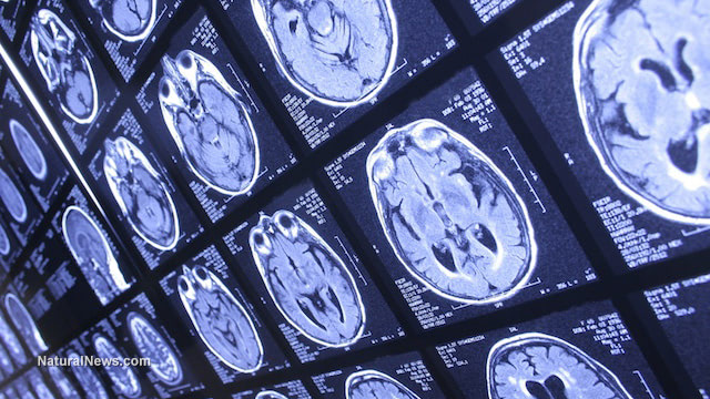 Scientists use ultrasound waves to eliminate Alzheimer's-related brain plaque