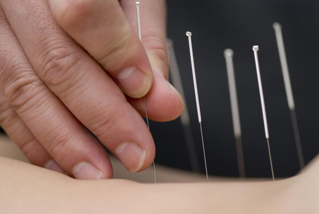Electroacupuncture found to improve blood flow and skin temperature in patients with poor blood supply to the heart