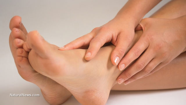 Natural first aid recipe for bumps, bruises and sprains
