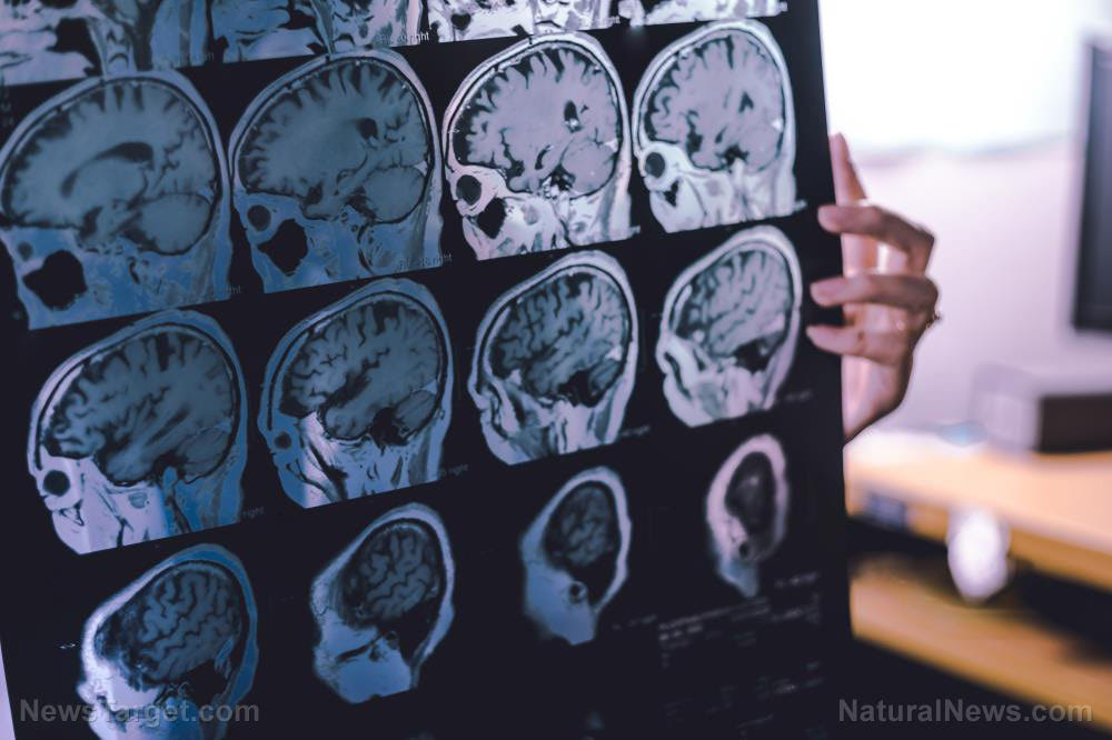 STUDY: Covid vaccines cause Alzheimer's, brain changes