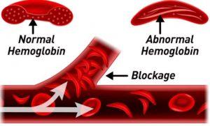 abnormal-hemoglobin