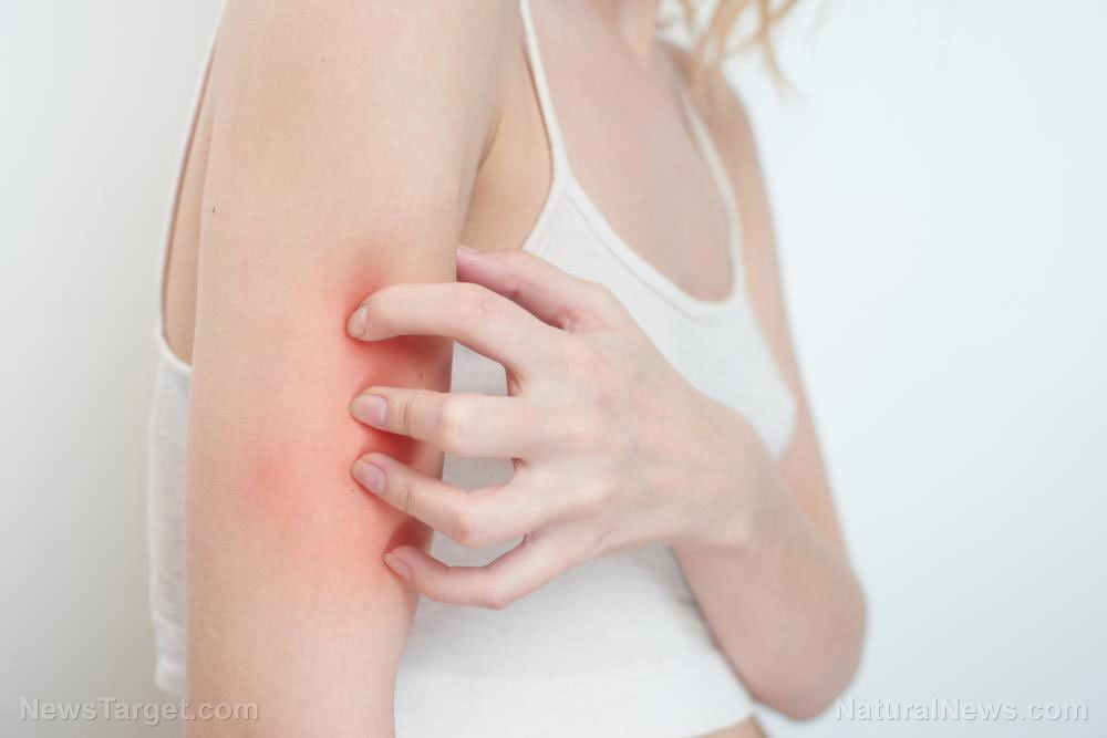 5 Natural treatments for eczema