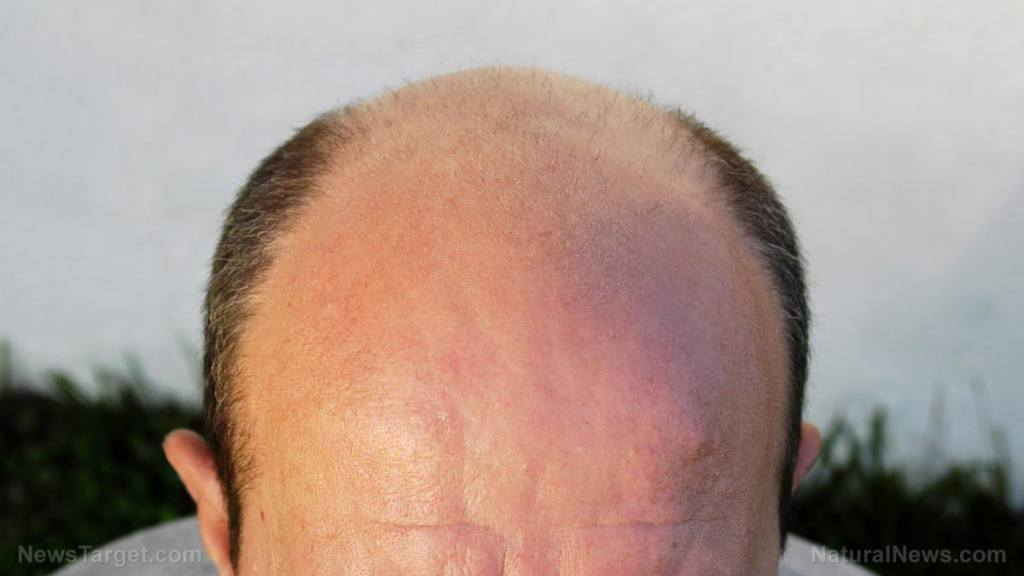 """Want to go bald? Get a covid """"vaccine!"""""""