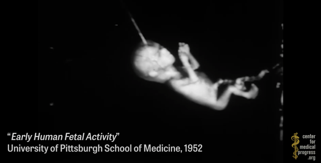 Dr. Fauci funds the organ trafficking of aborted babies, helping researchers graft baby scalps onto rodents